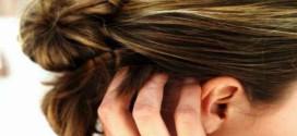 Dermatite seborroica: come alleviare i disturbi con i rimedi naturali
