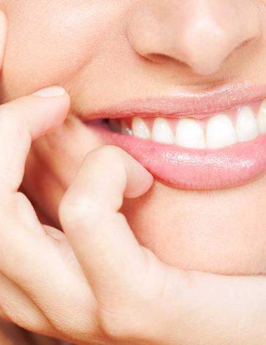 Denti gialli: come sbiancarli con 5 rimedi fai da te di Adriana Spink