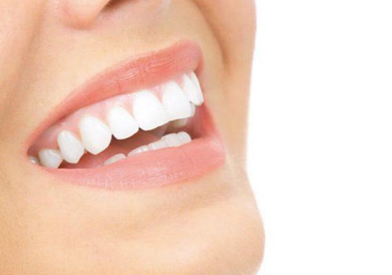 sbiancanti dentali