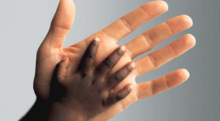 melanina pigmentazione